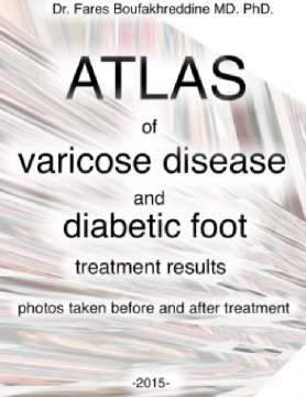 Atlas of varicose disease and diabetic foot treatment results