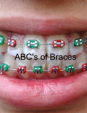 ABC's of Braces