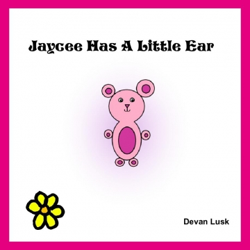 Jaycee Has A Little Ear. Right sided Microtia