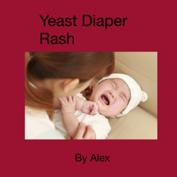 Yeast Diaper Rash