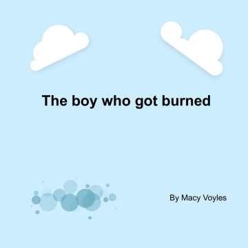 The boy who got burned