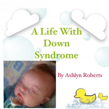 A Life with Down Syndrome